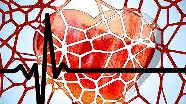 Ataque cardiaco en mujeres Probier